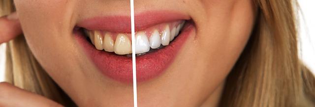 Zahnpflege, weise Zähne